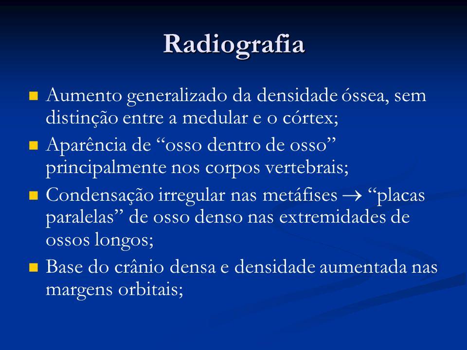 Radiografia Aumento generalizado da densidade óssea, sem distinção entre a medular e o córtex; Aparência de osso dentro de osso principalmente nos cor