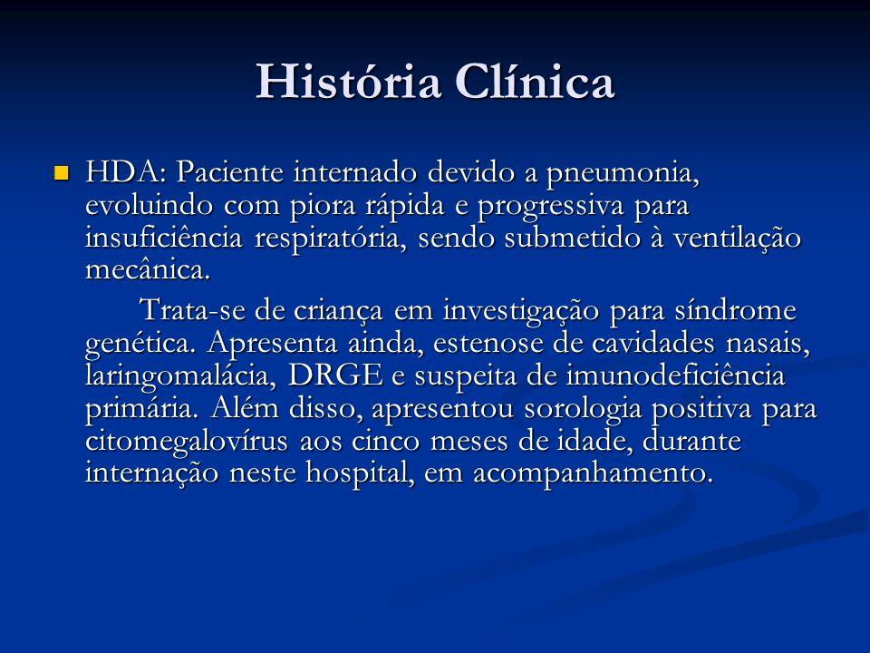 História Clínica HDA: Paciente internado devido a pneumonia, evoluindo com piora rápida e progressiva para insuficiência respiratória, sendo submetido à ventilação mecânica.