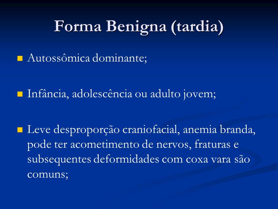 Forma Benigna (tardia) Autossômica dominante; Infância, adolescência ou adulto jovem; Leve desproporção craniofacial, anemia branda, pode ter acometimento de nervos, fraturas e subsequentes deformidades com coxa vara são comuns;