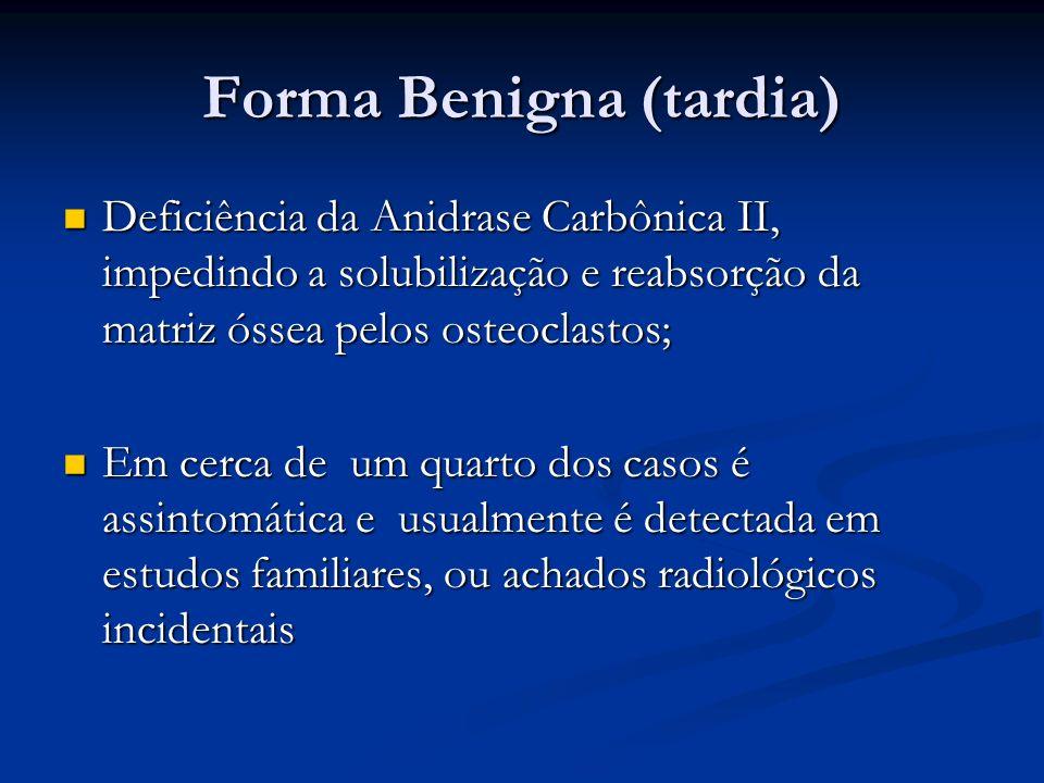 Forma Benigna (tardia) Deficiência da Anidrase Carbônica II, impedindo a solubilização e reabsorção da matriz óssea pelos osteoclastos; Deficiência da Anidrase Carbônica II, impedindo a solubilização e reabsorção da matriz óssea pelos osteoclastos; Em cerca de um quarto dos casos é assintomática e usualmente é detectada em estudos familiares, ou achados radiológicos incidentais Em cerca de um quarto dos casos é assintomática e usualmente é detectada em estudos familiares, ou achados radiológicos incidentais