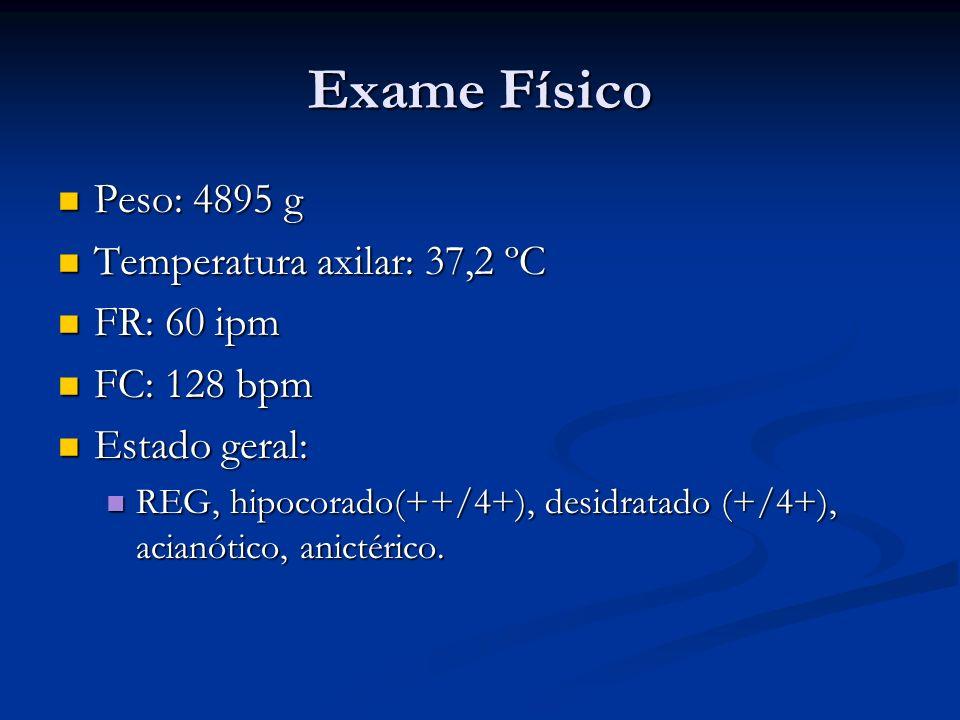 Exame Físico Peso: 4895 g Peso: 4895 g Temperatura axilar: 37,2 ºC Temperatura axilar: 37,2 ºC FR: 60 ipm FR: 60 ipm FC: 128 bpm FC: 128 bpm Estado geral: Estado geral: REG, hipocorado(++/4+), desidratado (+/4+), acianótico, anictérico.