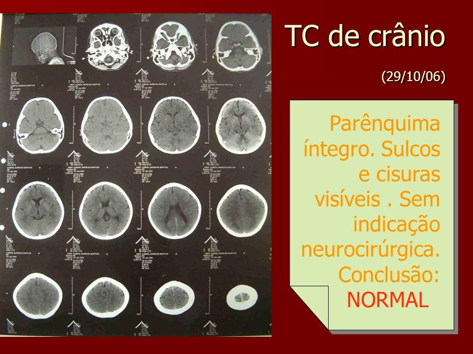 TC de crânio (29/10/06) Parênquima íntegro. Sulcos e cisuras visíveis. Sem indicação neurocirúrgica. Conclusão: NORMAL Parênquima íntegro. Sulcos e ci