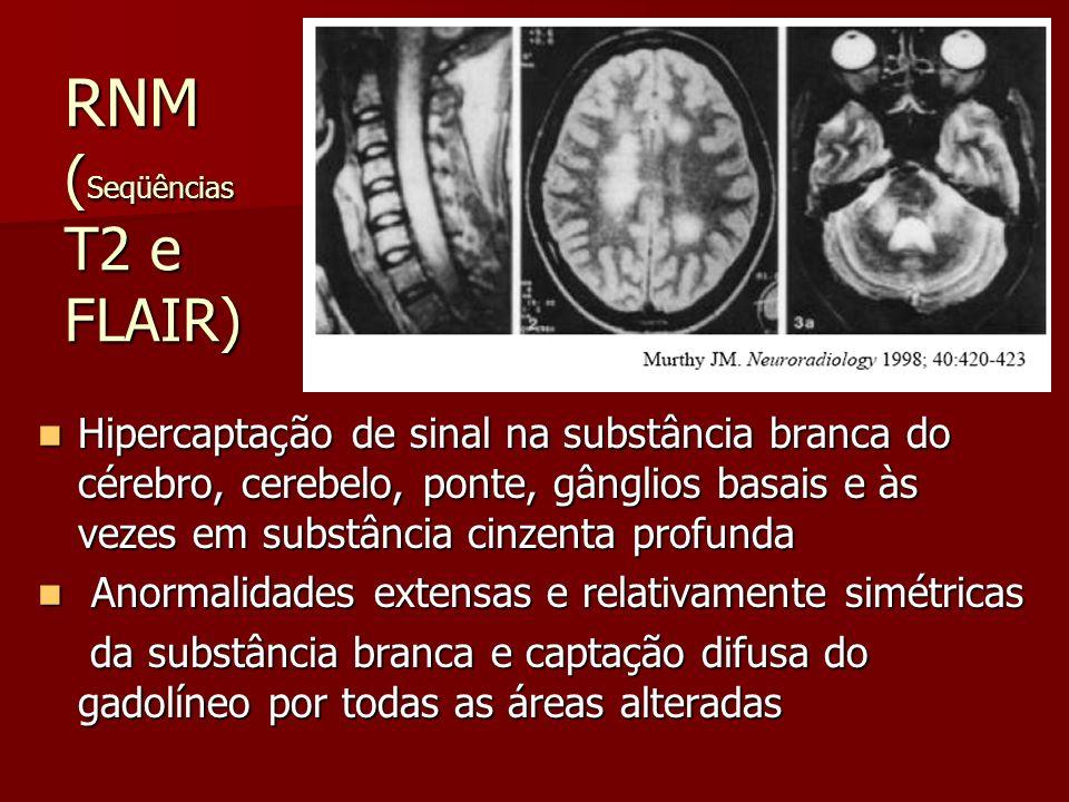 RNM ( Seqüências T2 e FLAIR) Hipercaptação de sinal na substância branca do cérebro, cerebelo, ponte, gânglios basais e às vezes em substância cinzent