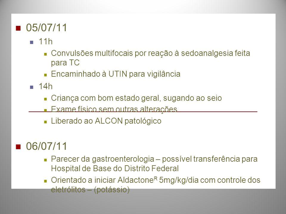 05/07/11 11h Convulsões multifocais por reação à sedoanalgesia feita para TC Encaminhado à UTIN para vigilância 14h Criança com bom estado geral, suga