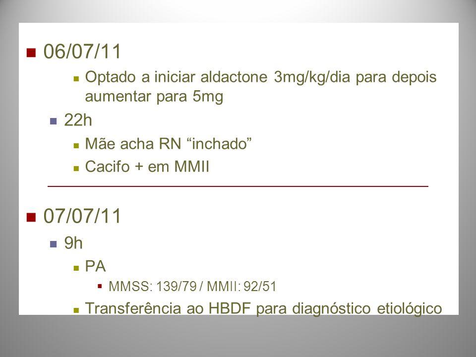 06/07/11 Optado a iniciar aldactone 3mg/kg/dia para depois aumentar para 5mg 22h Mãe acha RN inchado Cacifo + em MMII 07/07/11 9h PA MMSS: 139/79 / MM
