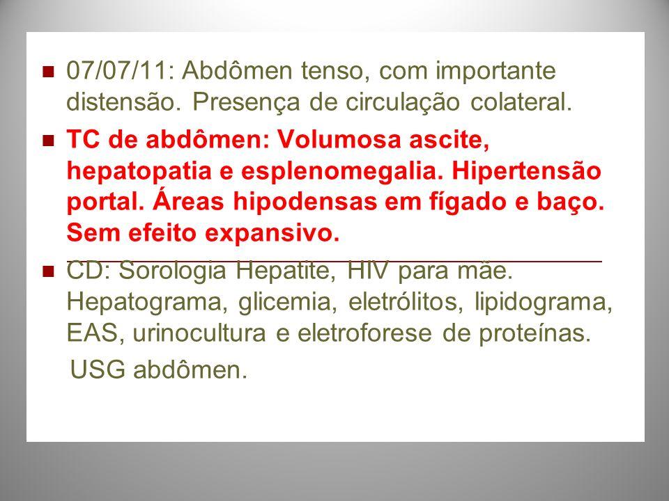 07/07/11: Abdômen tenso, com importante distensão. Presença de circulação colateral. TC de abdômen: Volumosa ascite, hepatopatia e esplenomegalia. Hip
