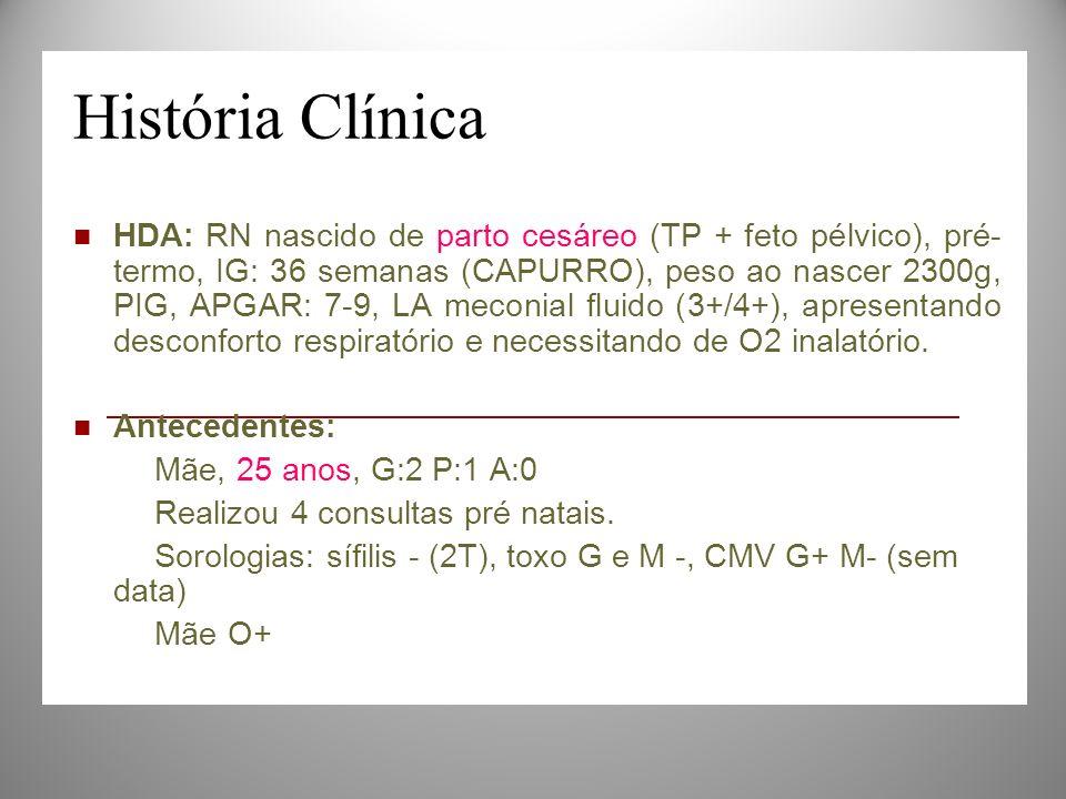 História Clínica HDA: RN nascido de parto cesáreo (TP + feto pélvico), pré- termo, IG: 36 semanas (CAPURRO), peso ao nascer 2300g, PIG, APGAR: 7-9, LA