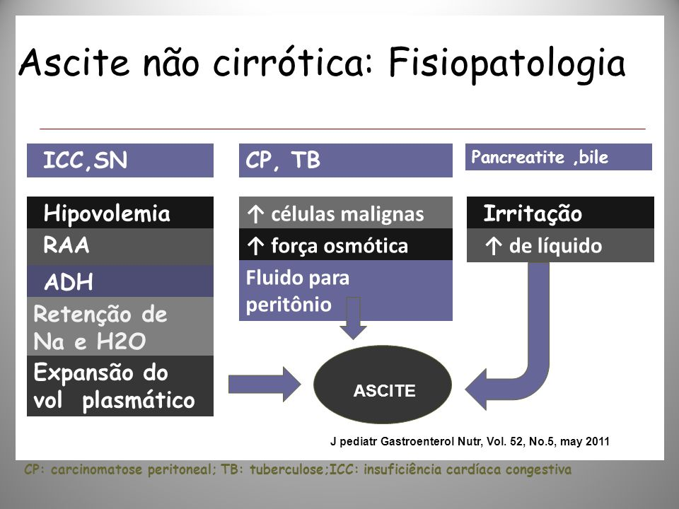 Ascite: Fisiopatologia Fonte:J pediatr Gastroenterol Nutr, Vol. 52, No.5, May 2011