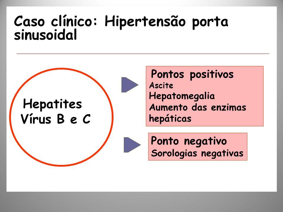 Caso clínico: Hipertensão porta sinusoidal Hepatites Vírus B e C Pontos positivos Ascite Hepatomegalia Aumento das enzimas hepáticas Ponto negativo So