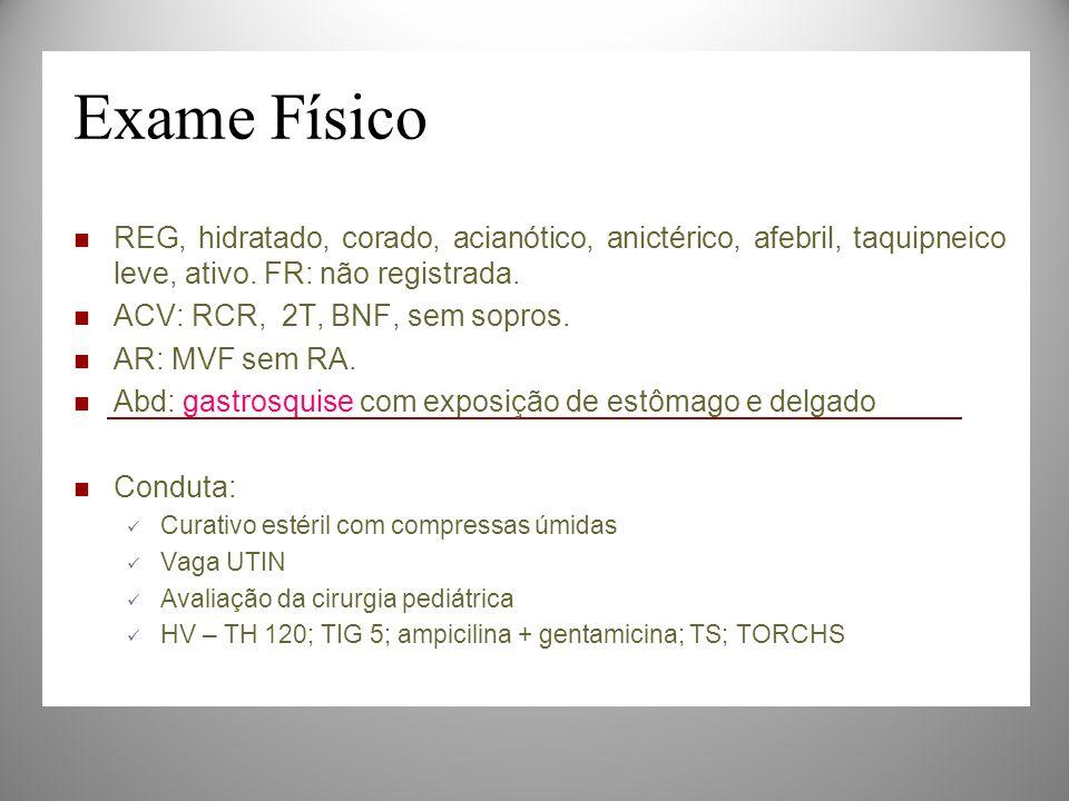 Exame Físico REG, hidratado, corado, acianótico, anictérico, afebril, taquipneico leve, ativo. FR: não registrada. ACV: RCR, 2T, BNF, sem sopros. AR: