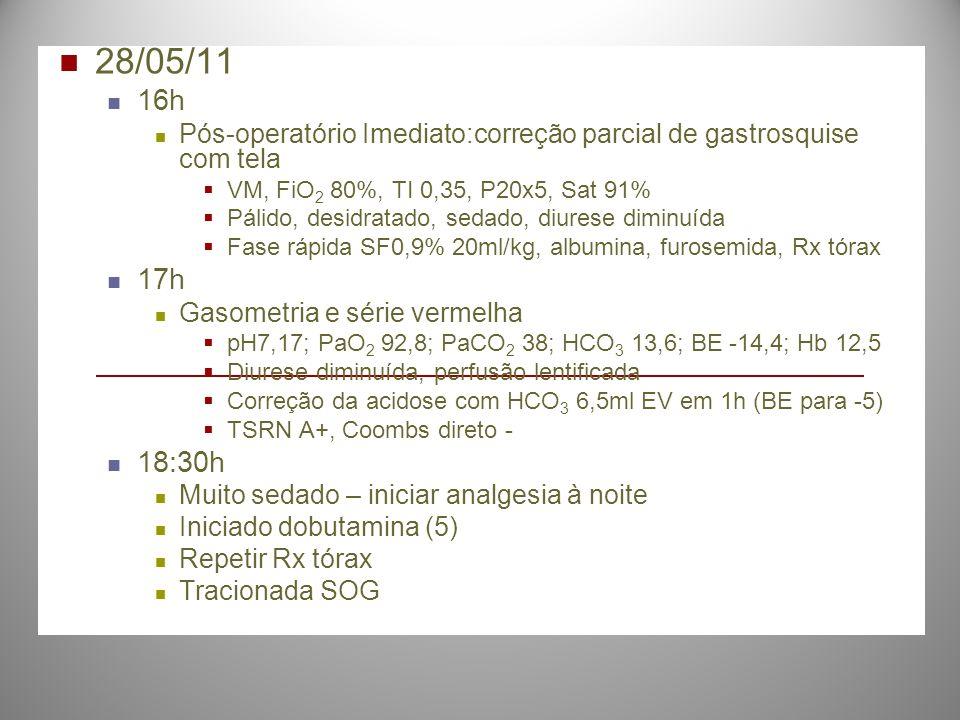28/05/11 16h Pós-operatório Imediato:correção parcial de gastrosquise com tela VM, FiO 2 80%, TI 0,35, P20x5, Sat 91% Pálido, desidratado, sedado, diu