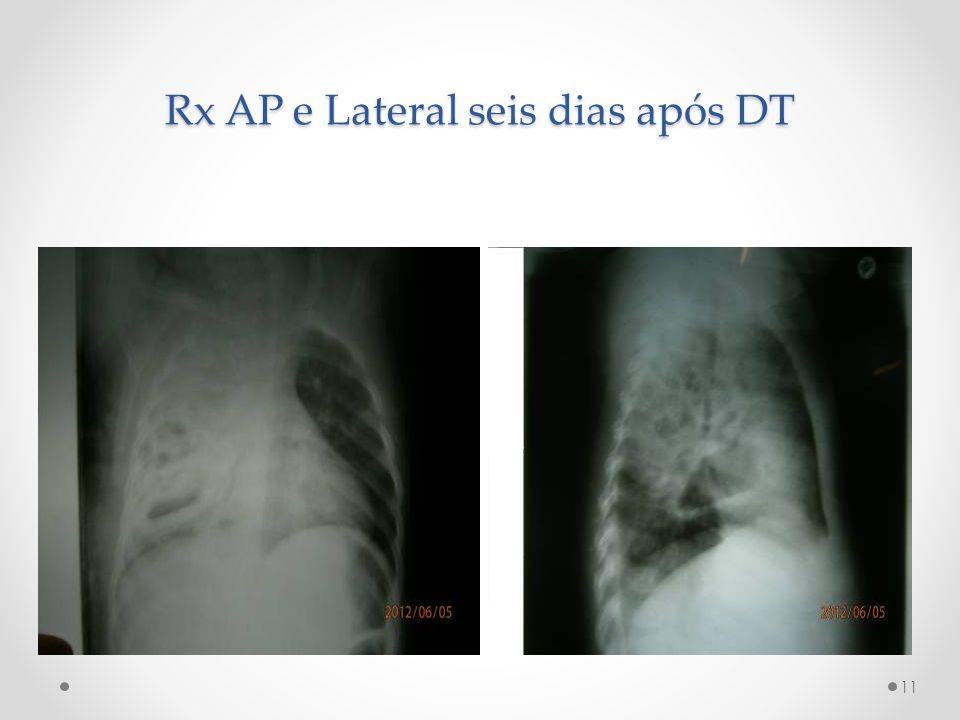 Rx AP e Lateral seis dias após DT 11