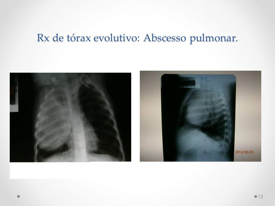 Rx de tórax evolutivo: Abscesso pulmonar. 13