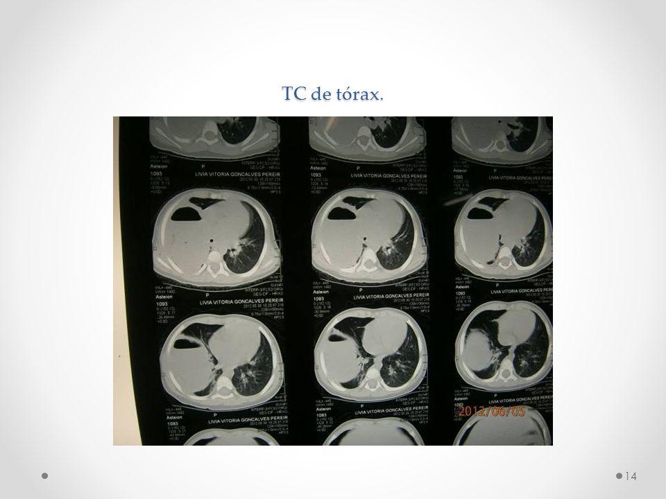 TC de tórax. 14