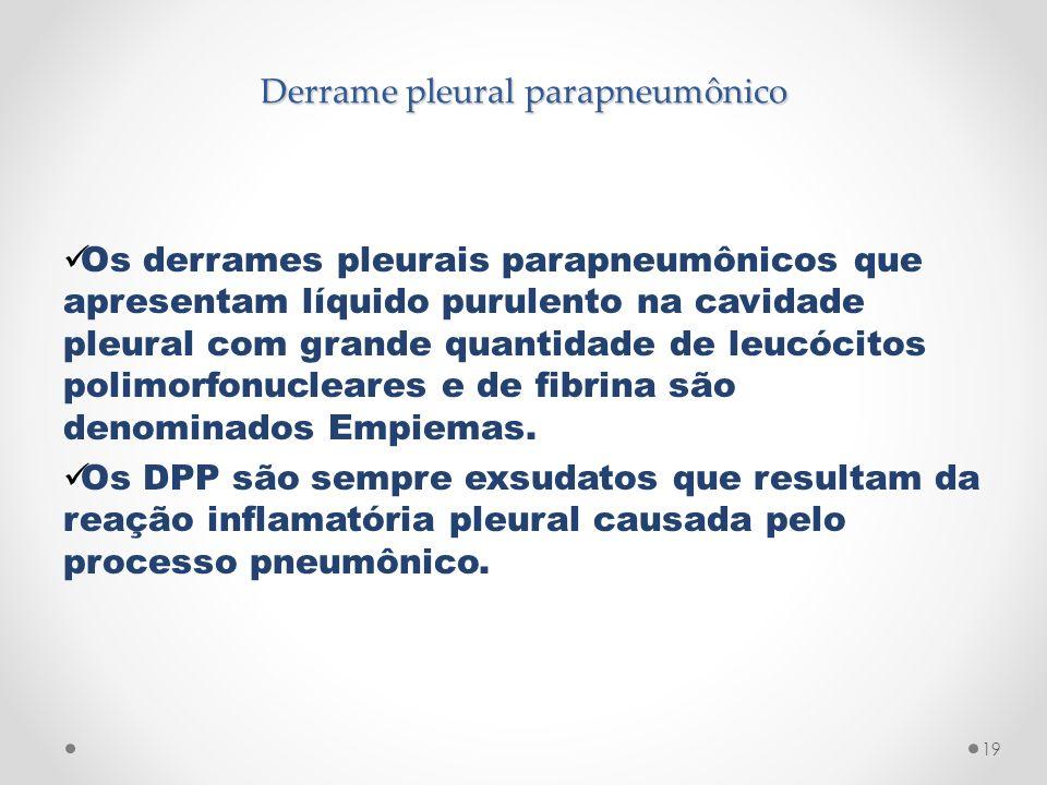 Derrame pleural parapneumônico Os derrames pleurais parapneumônicos que apresentam líquido purulento na cavidade pleural com grande quantidade de leuc