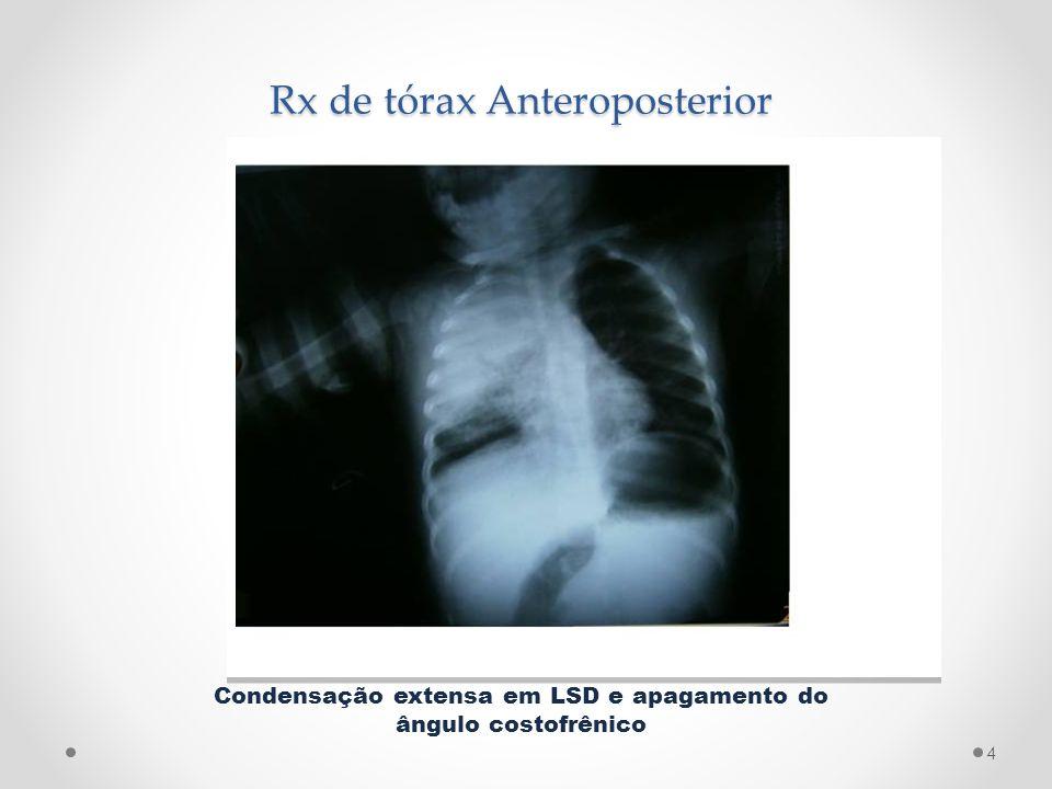 Rx de tórax Anteroposterior Condensação extensa em LSD e apagamento do ângulo costofrênico 4