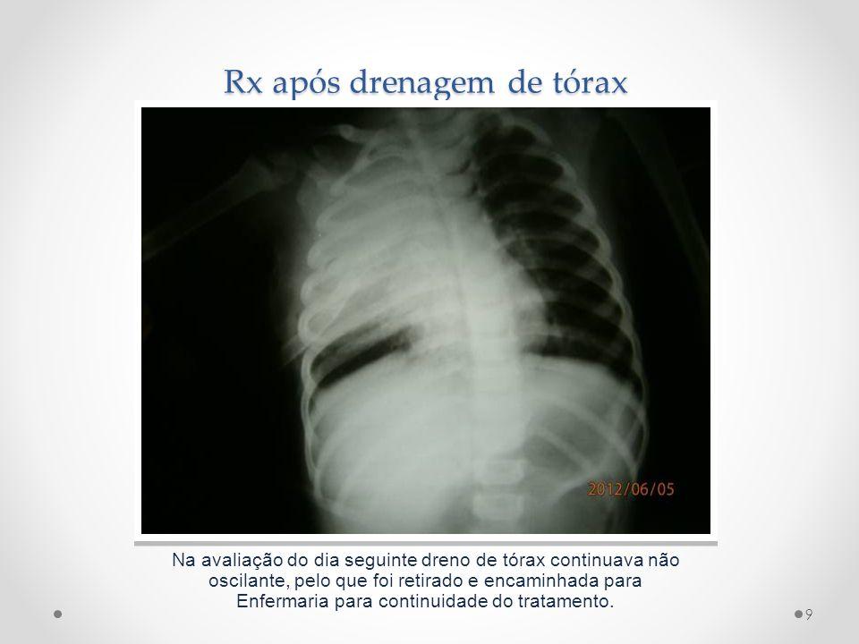 Rx após drenagem de tórax Na avaliação do dia seguinte dreno de tórax continuava não oscilante, pelo que foi retirado e encaminhada para Enfermaria pa