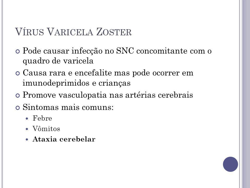 V ÍRUS V ARICELA Z OSTER Pode causar infecção no SNC concomitante com o quadro de varicela Causa rara e encefalite mas pode ocorrer em imunodeprimidos