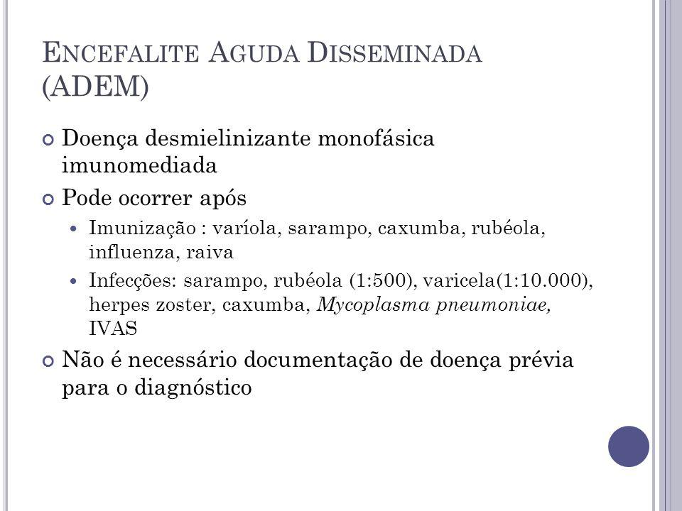 E NCEFALITE A GUDA D ISSEMINADA (ADEM) Doença desmielinizante monofásica imunomediada Pode ocorrer após Imunização : varíola, sarampo, caxumba, rubéol