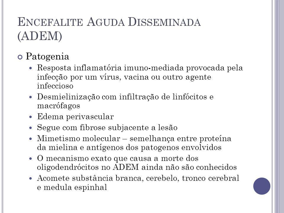 E NCEFALITE A GUDA D ISSEMINADA (ADEM) Patogenia Resposta inflamatória imuno-mediada provocada pela infecção por um vírus, vacina ou outro agente infe