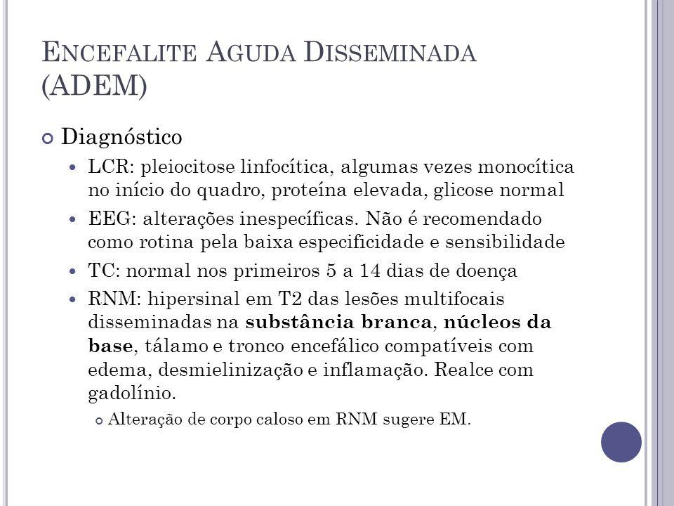 E NCEFALITE A GUDA D ISSEMINADA (ADEM) Diagnóstico LCR: pleiocitose linfocítica, algumas vezes monocítica no início do quadro, proteína elevada, glico