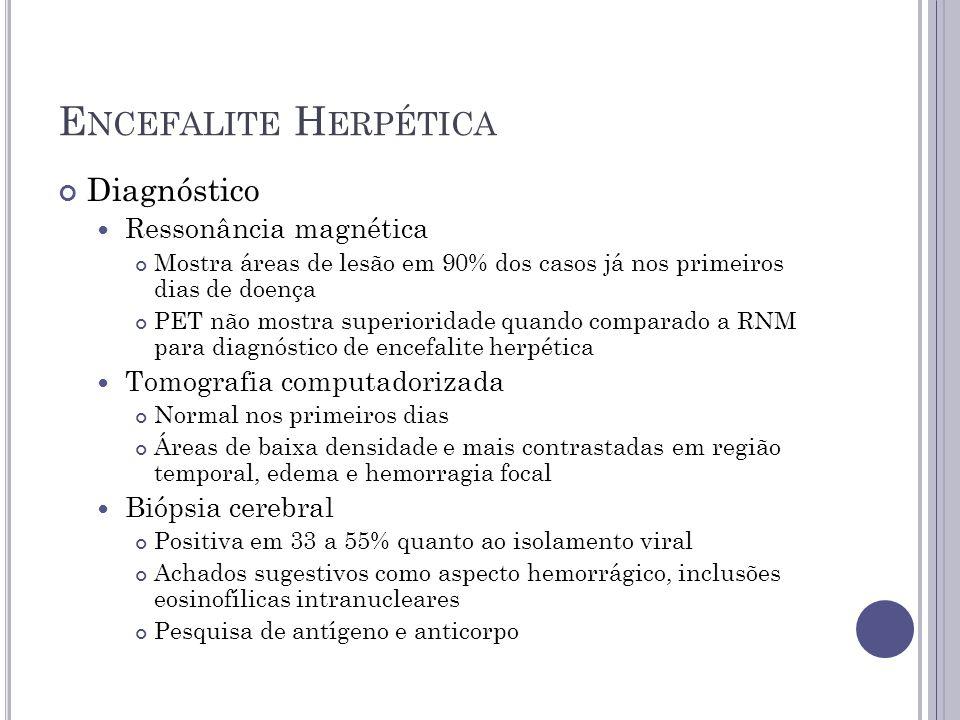 E NCEFALITE H ERPÉTICA Diagnóstico Ressonância magnética Mostra áreas de lesão em 90% dos casos já nos primeiros dias de doença PET não mostra superio