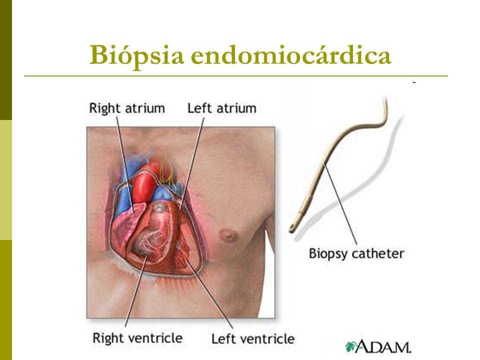 Biópsia endomiocárdica