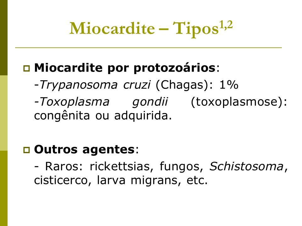Miocardite – Tipos 1,2 Miocardite por protozoários: -Trypanosoma cruzi (Chagas): 1% -Toxoplasma gondii (toxoplasmose): congênita ou adquirida. Outros