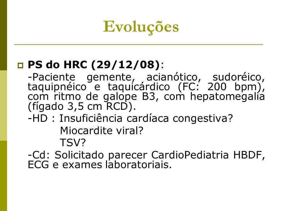 Evoluções PS do HRC (29/12/08): -Paciente gemente, acianótico, sudoréico, taquipnéico e taquicárdico (FC: 200 bpm), com ritmo de galope B3, com hepato