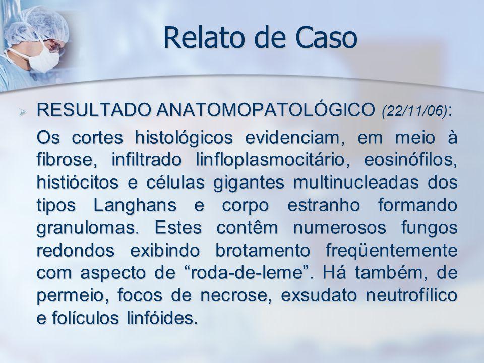 Relato de Caso RESULTADO ANATOMOPATOLÓGICO (22/11/06) : RESULTADO ANATOMOPATOLÓGICO (22/11/06) : Os cortes histológicos evidenciam, em meio à fibrose,