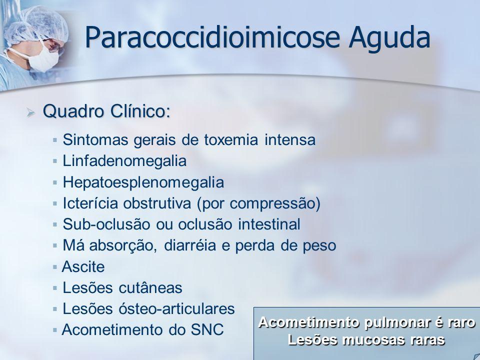 Paracoccidioimicose Aguda Quadro Clínico: Quadro Clínico: Sintomas gerais de toxemia intensa Linfadenomegalia Hepatoesplenomegalia Icterícia obstrutiv