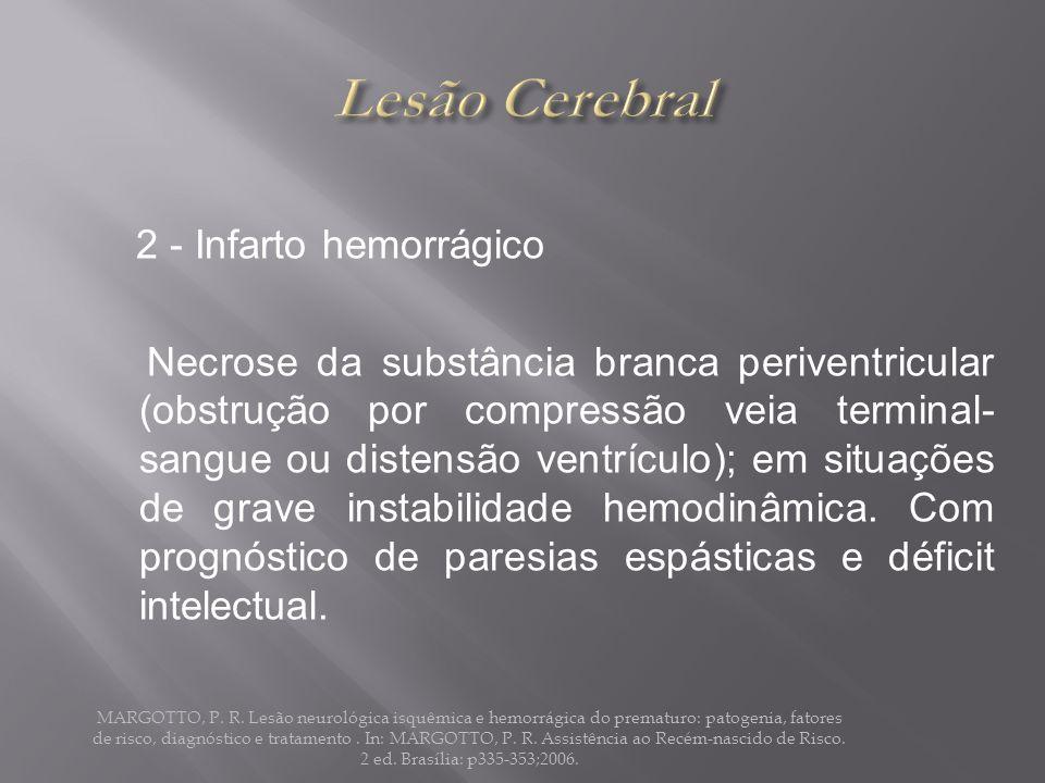 3 - Leucomalácia periventricular Infarto isquêmico região da substância branca, podendo evoluir para lesões císticas (necrose focal); conseqüentes ao hipofluxo cerebral ou citocinas inflamatórias.