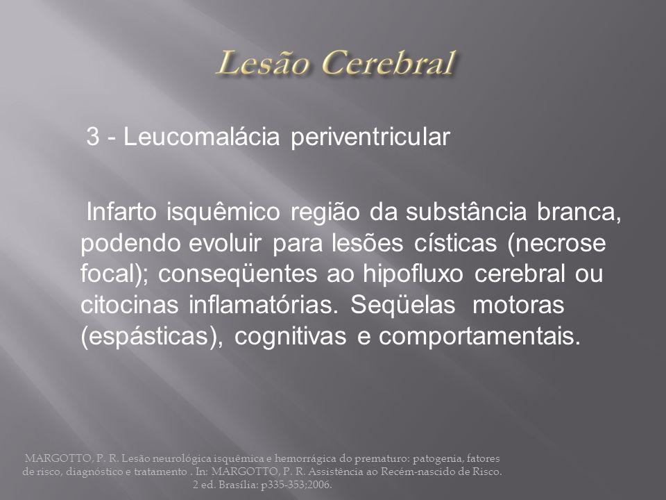 3 - Leucomalácia periventricular Infarto isquêmico região da substância branca, podendo evoluir para lesões císticas (necrose focal); conseqüentes ao