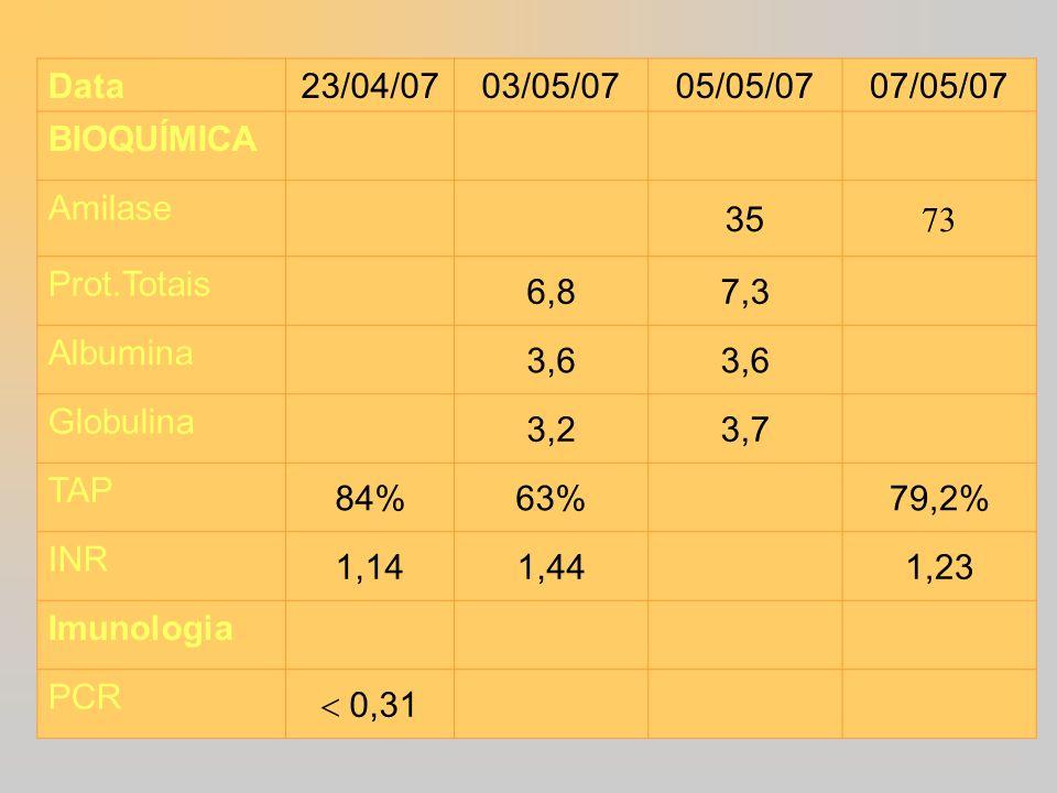 Data 23/04/0703/05/0705/05/0707/05/07 BIOQUÍMICA Amilase 35 73 Prot.Totais 6,87,3 Albumina 3,6 Globulina 3,23,7 TAP 84%63%79,2% INR 1,141,441,23 Imuno
