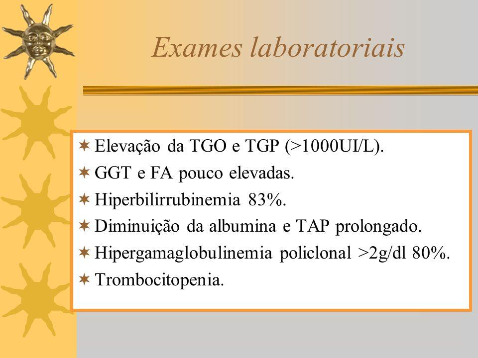 Exames laboratoriais Elevação da TGO e TGP (>1000UI/L). GGT e FA pouco elevadas. Hiperbilirrubinemia 83%. Diminuição da albumina e TAP prolongado. Hip