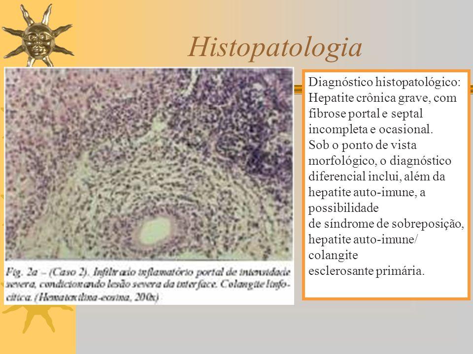 Diagnóstico histopatológico: Hepatite crônica grave, com fibrose portal e septal incompleta e ocasional. Sob o ponto de vista morfológico, o diagnósti