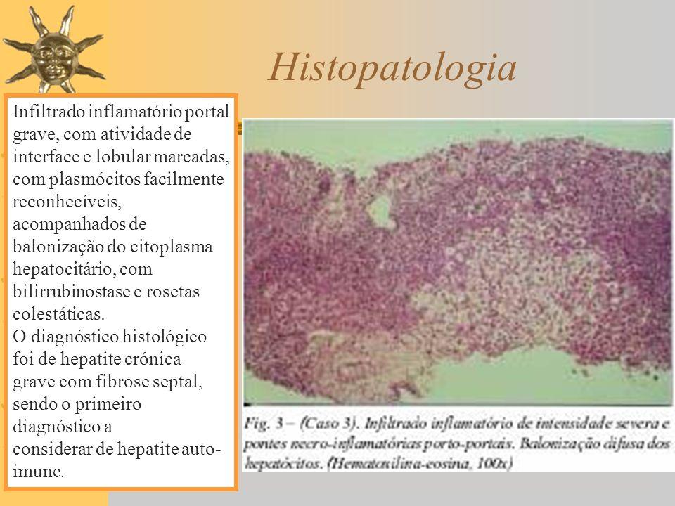 Histopatologia Infiltrado inflamatório portal grave, com atividade de interface e lobular marcadas, com plasmócitos facilmente reconhecíveis, acompanh