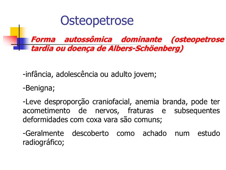 Osteopetrose Forma autossômica dominante (osteopetrose tardia ou doença de Albers-Schöenberg) -infância, adolescência ou adulto jovem; -Benigna; -Leve