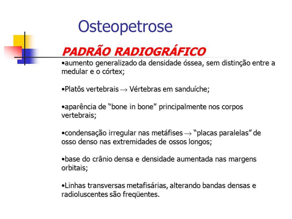 Osteopetrose PADRÃO RADIOGRÁFICO aumento generalizado da densidade óssea, sem distinção entre a medular e o córtex;aumento generalizado da densidade ó