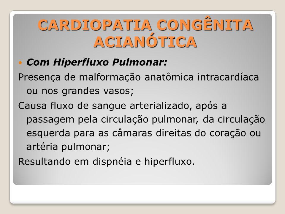 CARDIOPATIA CONGÊNITA ACIANÓTICA Com Hiperfluxo Pulmonar: Presença de malformação anatômica intracardíaca ou nos grandes vasos; Causa fluxo de sangue