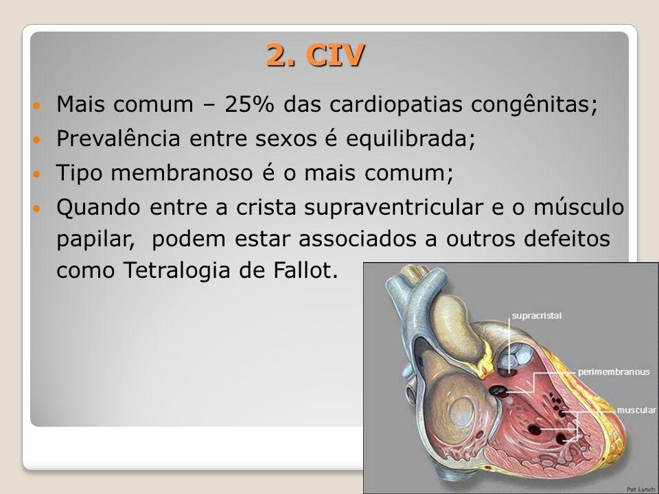 2. CIV Mais comum – 25% das cardiopatias congênitas; Prevalência entre sexos é equilibrada; Tipo membranoso é o mais comum; Quando entre a crista supr