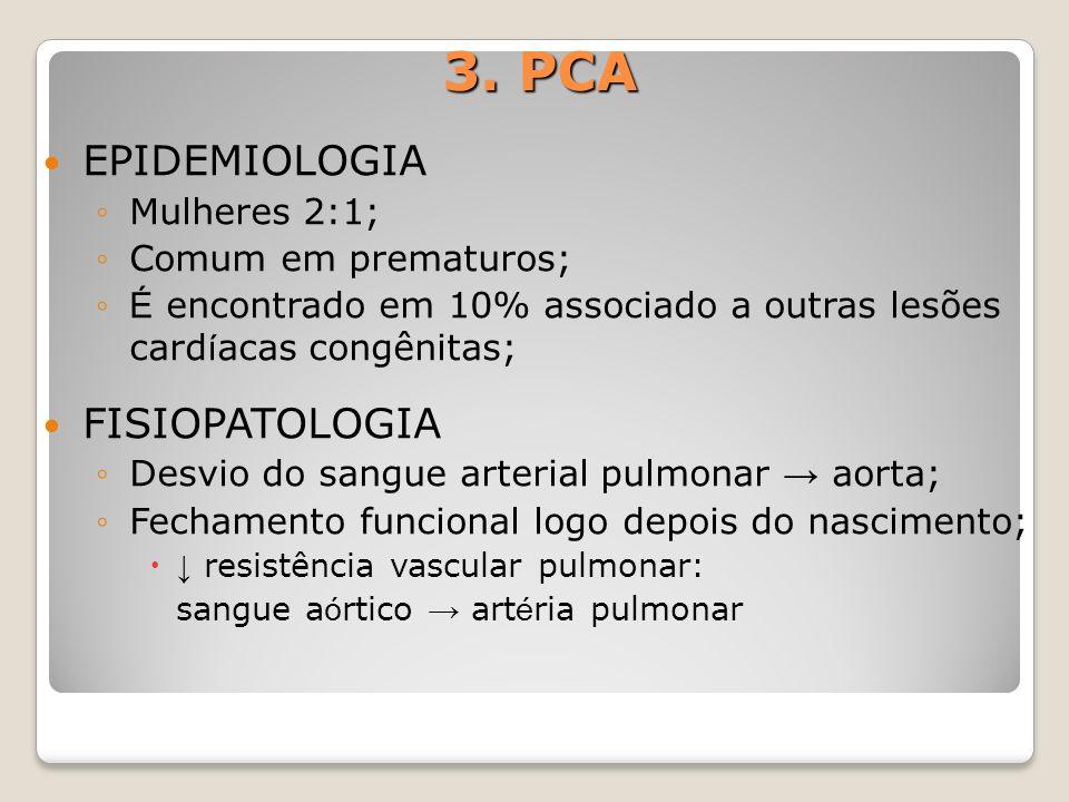 3. PCA EPIDEMIOLOGIA Mulheres 2:1; Comum em prematuros; É encontrado em 10% associado a outras lesões card í acas congênitas; FISIOPATOLOGIA Desvio do