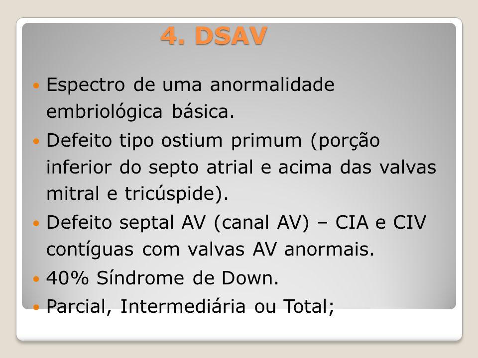 4. DSAV Espectro de uma anormalidade embriológica básica. Defeito tipo ostium primum (porção inferior do septo atrial e acima das valvas mitral e tric