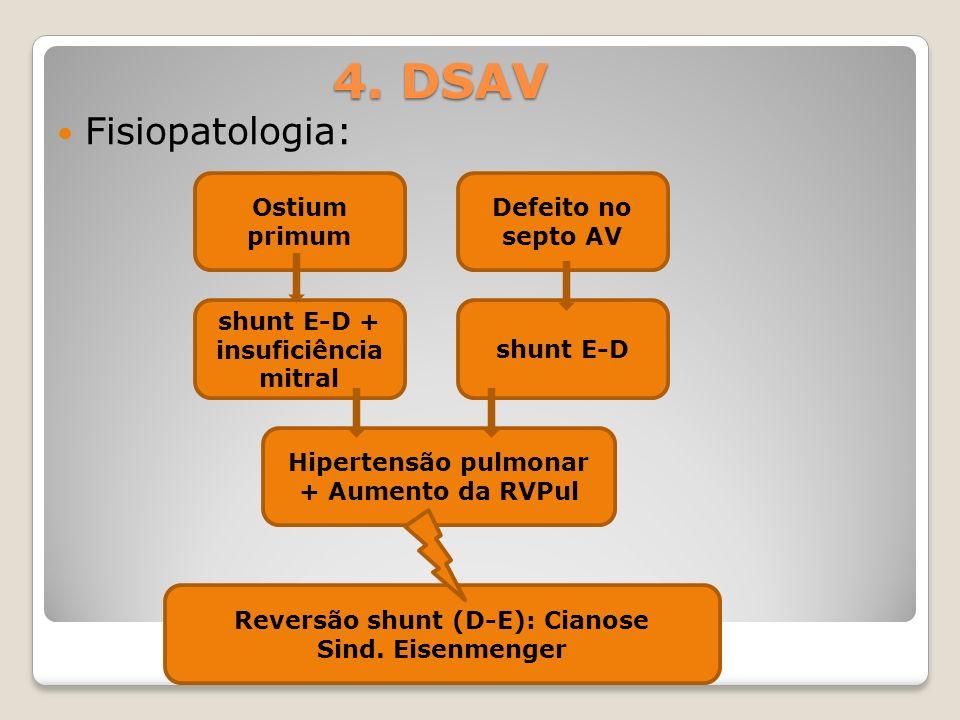 4. DSAV Fisiopatologia: Ostium primum shunt E-D + insuficiência mitral Defeito no septo AV shunt E-D Hipertensão pulmonar + Aumento da RVPul Reversão