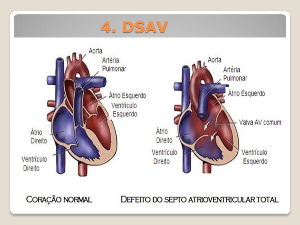 4. DSAV