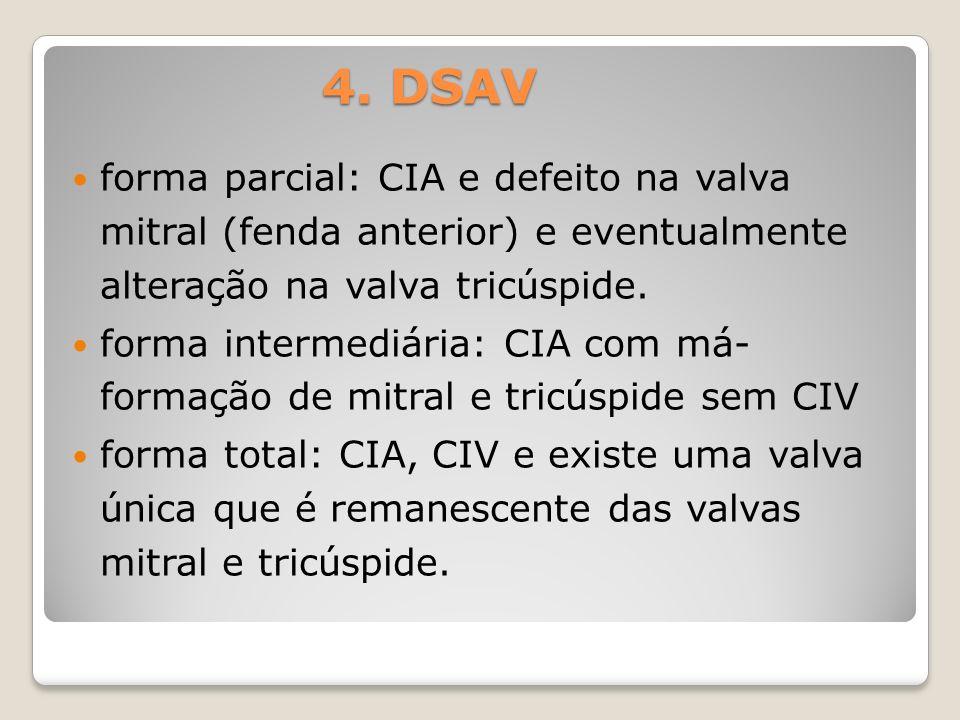 forma parcial: CIA e defeito na valva mitral (fenda anterior) e eventualmente alteração na valva tricúspide. forma intermediária: CIA com má- formação