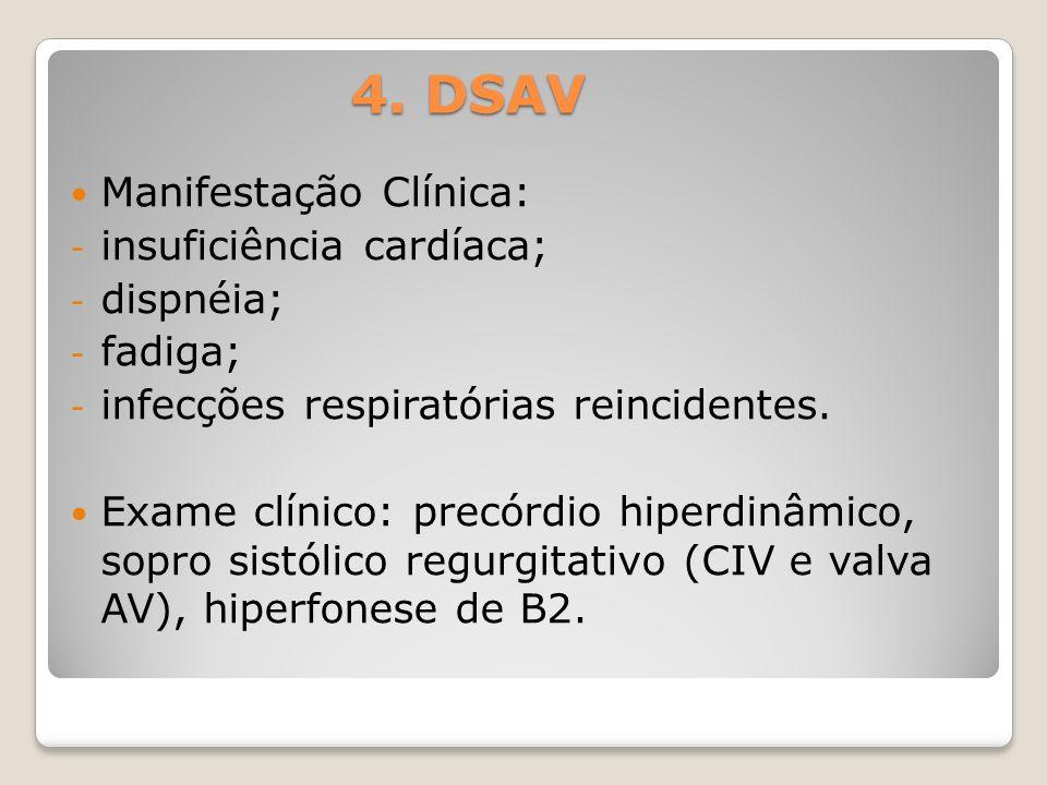 4. DSAV Manifestação Clínica: - insuficiência cardíaca; - dispnéia; - fadiga; - infecções respiratórias reincidentes. Exame clínico: precórdio hiperdi