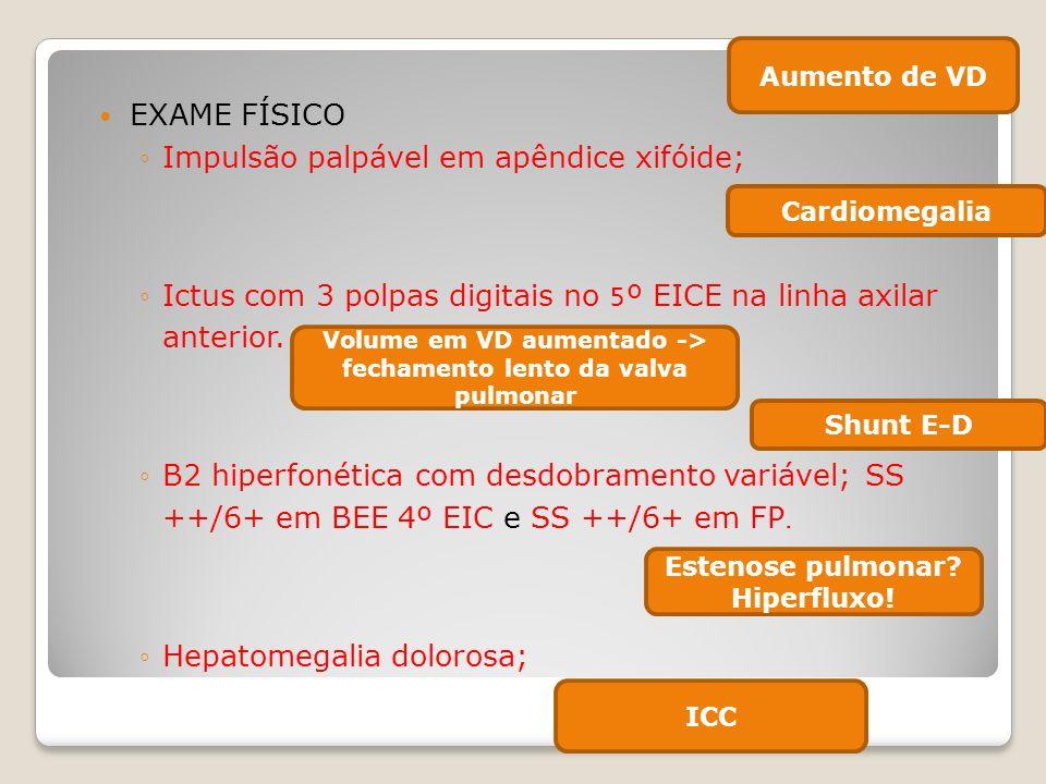 EXAME FÍSICO Impulsão palpável em apêndice xifóide; Ictus com 3 polpas digitais no 5º EICE na linha axilar anterior. B2 hiperfonética com desdobrament
