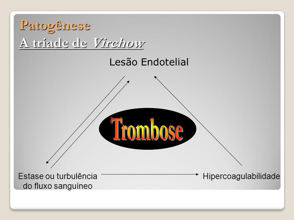 Lesão Endotelial Patogênese A tríade de Virchow Estase ou turbulência do fluxo sanguíneo Hipercoagulabilidade