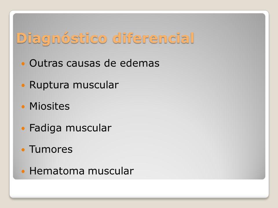 Diagnóstico diferencial Outras causas de edemas Ruptura muscular Miosites Fadiga muscular Tumores Hematoma muscular